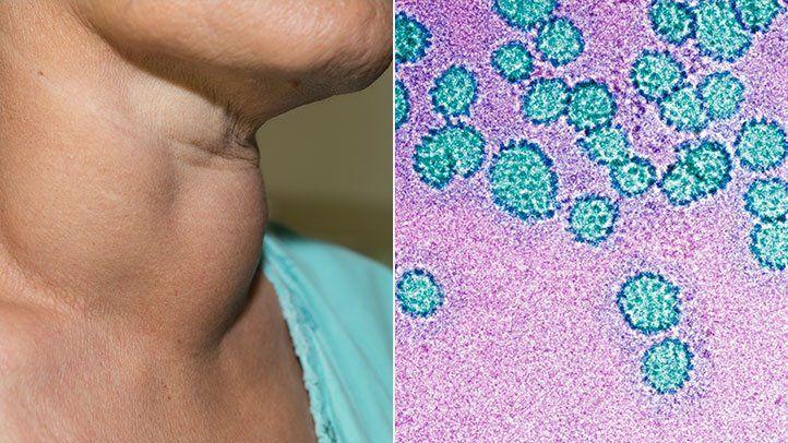condyloma acuminata pathology cancer benign meaning