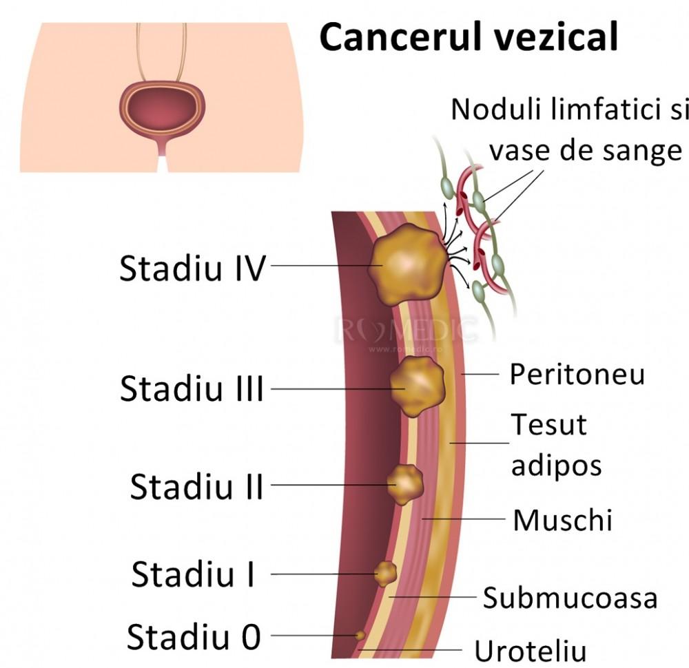 cancer vezica urinara stadiul 3 paraziți în tratamentul urechii umane