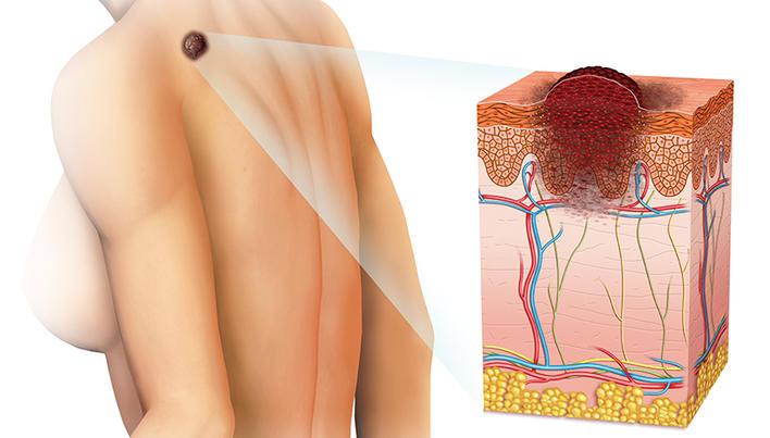se poate vindeca cancerul de piele modul de efectuare a curățării antiparazitare
