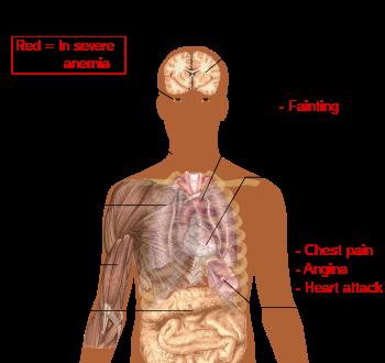 priznaky anemie z nedostatku zeleza boala giardiozei este tipică