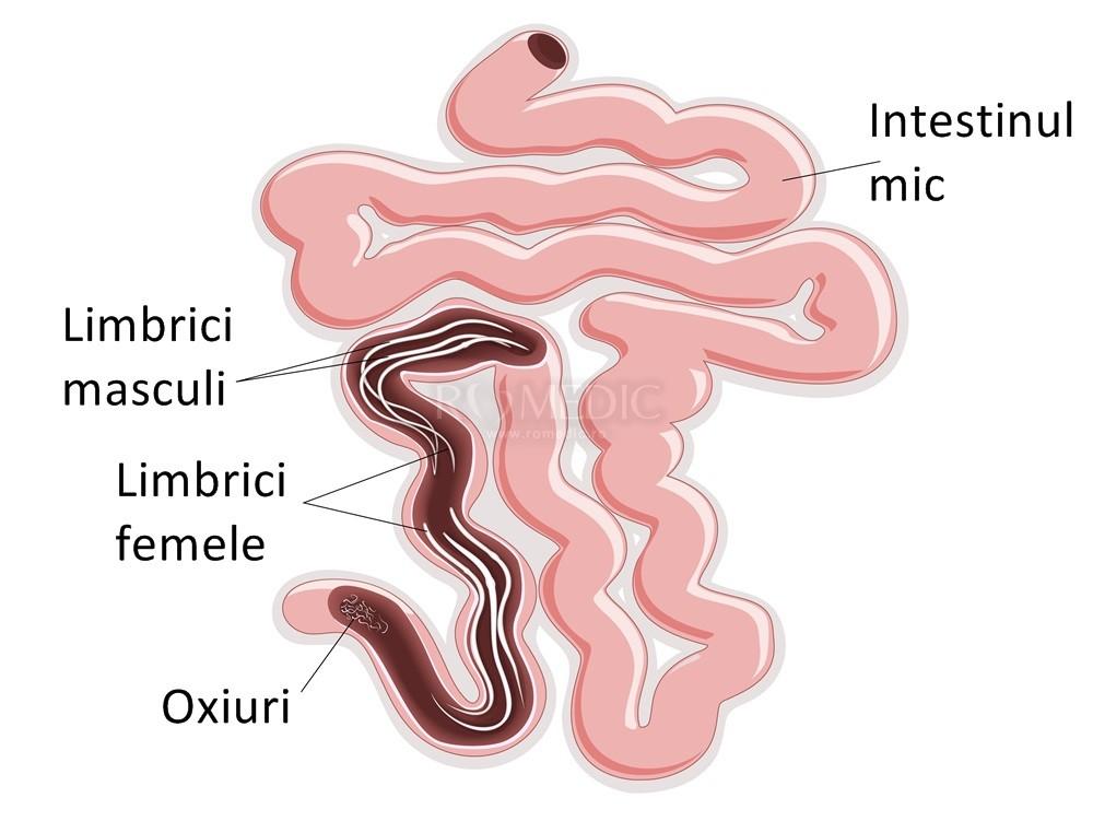 Tratamentul cronic al enterobiozei, Infectia cu oxiuri la copii - simptome si tratament