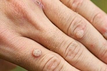 tratamentul mâncărimilor paraziți ai pielii