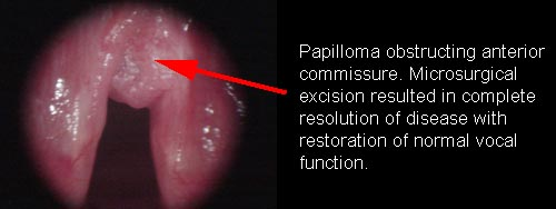 Is laryngeal papillomatosis a std