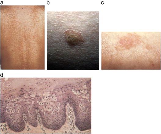 papiloma virus liecba Ajută circumcizia cu verucile genitale