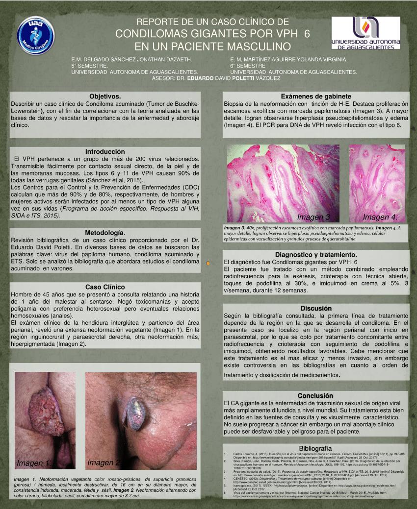 Papilomatosis laringea recurrente tratamiento