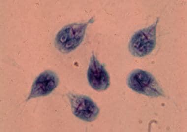 giardia bergen 2020 cancer de prostata hombres jovenes