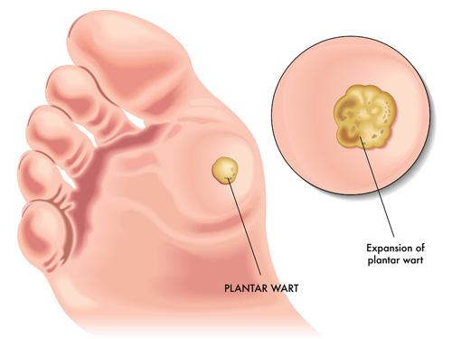 efectele condilomului tratamentului parasito de oxiuros