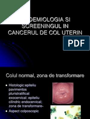 îndepărtarea condilomului uterin cu surgitron