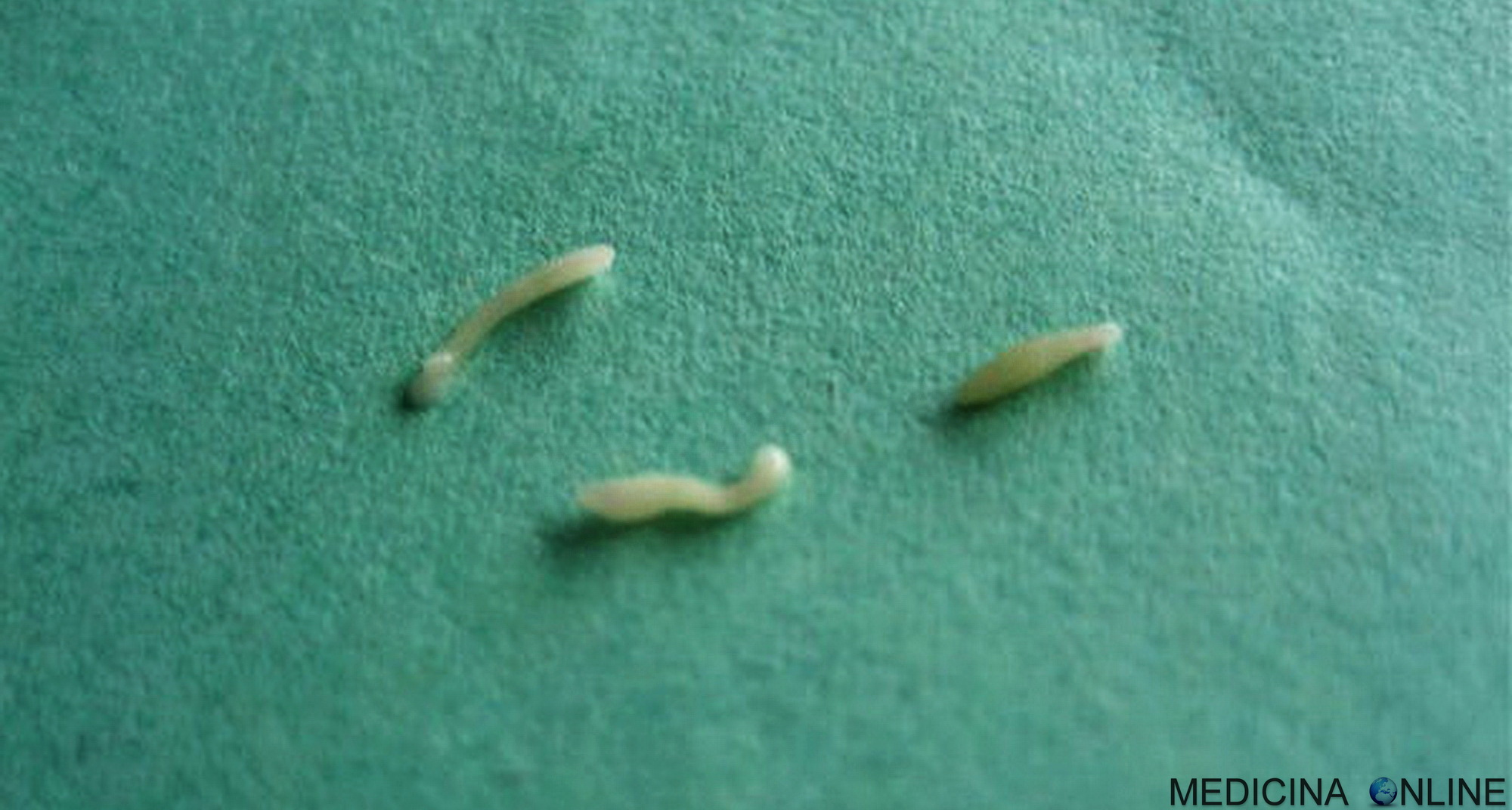 curățarea corpului de ciuperci parazite cancer colon urine