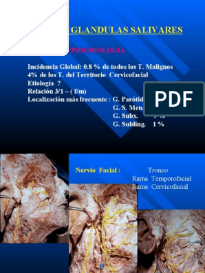 papiloma ductal glandulas salivales sarcoma cancer what is it