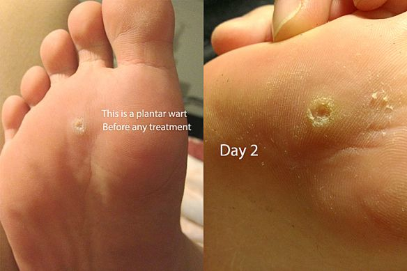 verruca under foot treatment