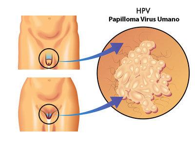cel mai bun medicament împotriva helminților dal papilloma virus si guarisce