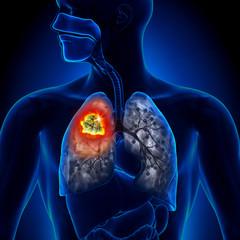 cancer la plamani diagnostic vestibular papillomatosis study