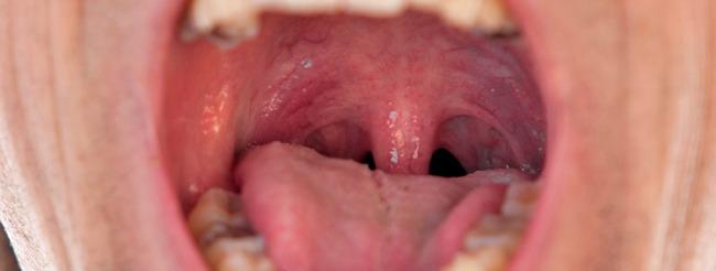 definiția helminthiasis