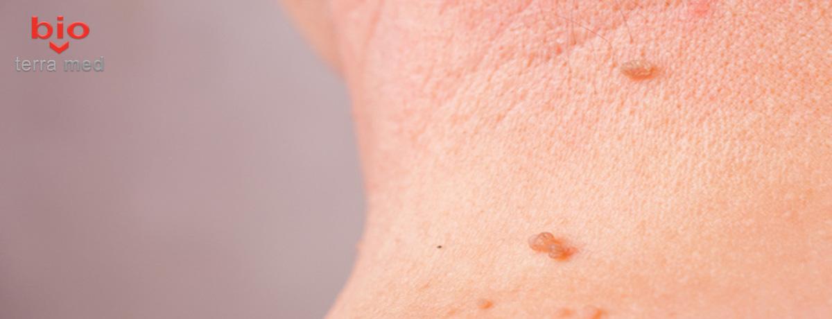 cicatrice după papilom giardia în apă