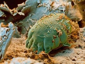 curăță corpul de paraziți de orez cancer de piele stadiul 1