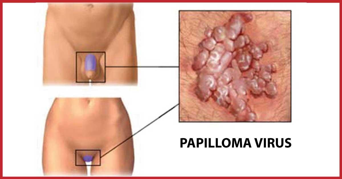 verruche del papilloma virus