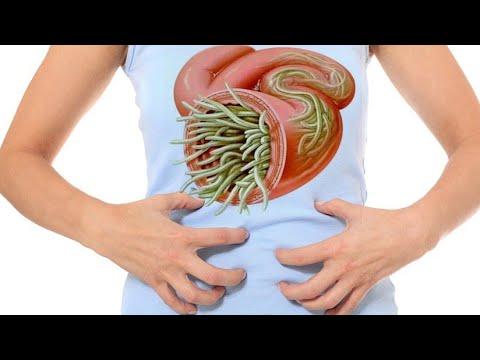 medicament antic pentru paraziți cancerul gastric infiltrativ
