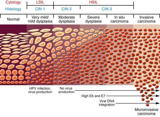 hpv virus cin 2 negi genitale la bărbați
