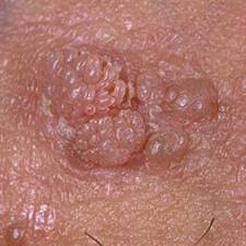 Tot ce trebuie sa stii despre HPV: Simptome & Tratament, Papillomavirus amygdale symptomes