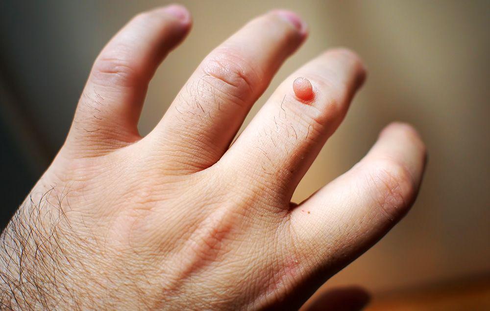 papilloma virus bovin papiloame în tratamentul rectului