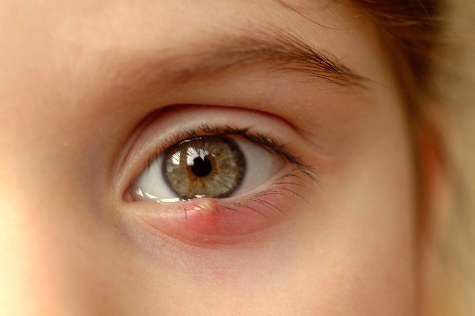 bacterii la ochi