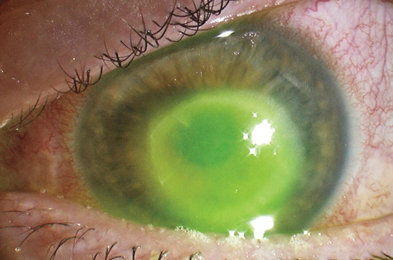 paraziti tratamentul ochilor blastocystis hominis paraziti nedir