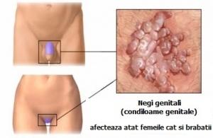papilloma virus simptome