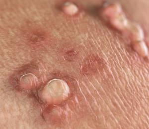 warze hpv infektion human papillomavirus gland
