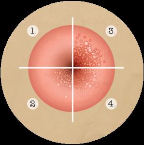 risques papillomavirus chez la femme nutriție pentru tratarea paraziților
