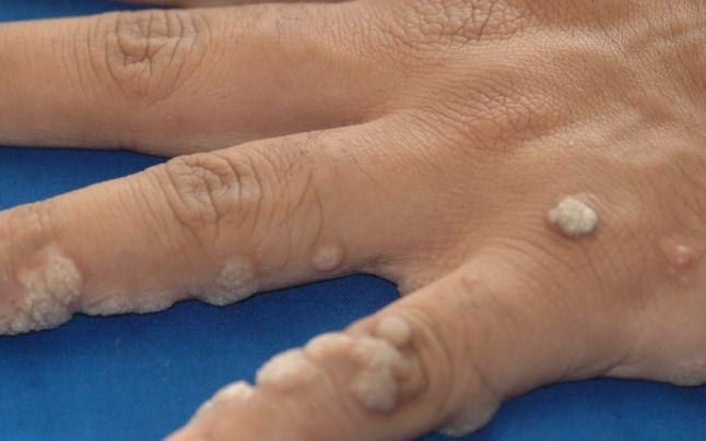 simptome cancer faza finala semne de nematode la om
