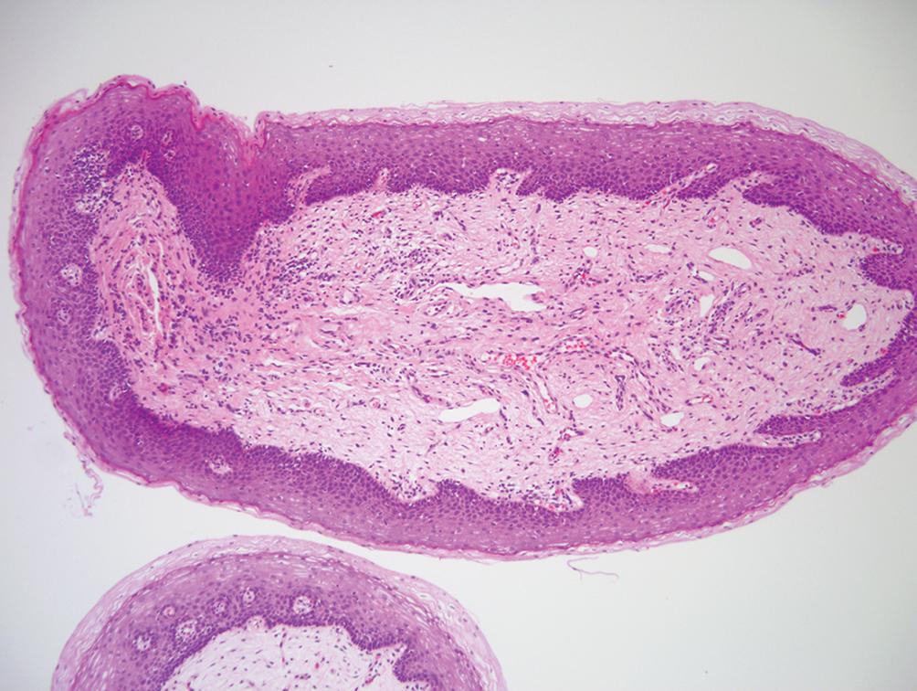 Vestibular papillomatosis histology, - Vestibular papillomatosis histology