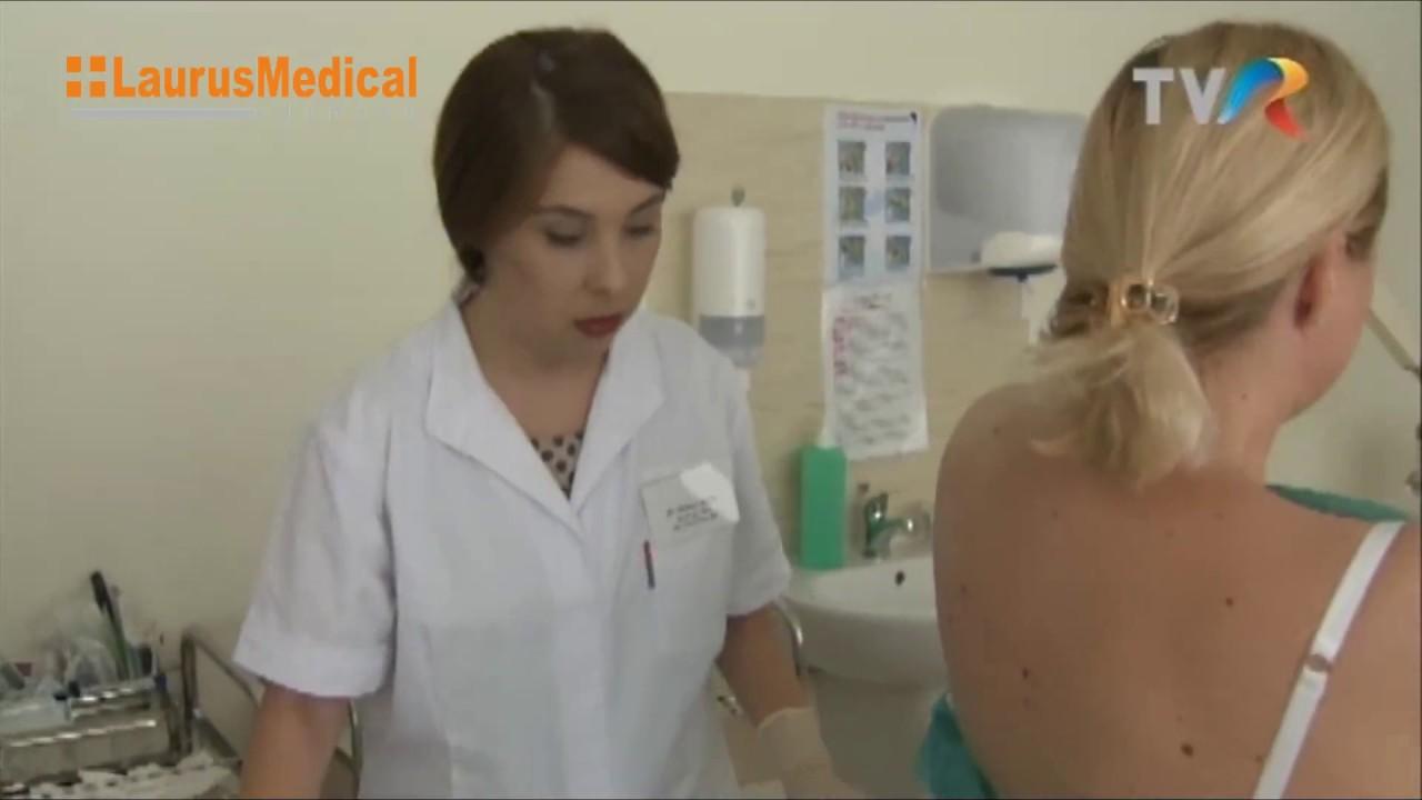Crioterapia, metoda de tratament pentru veruci, cheratoze, papiloame   power-tuning.ro