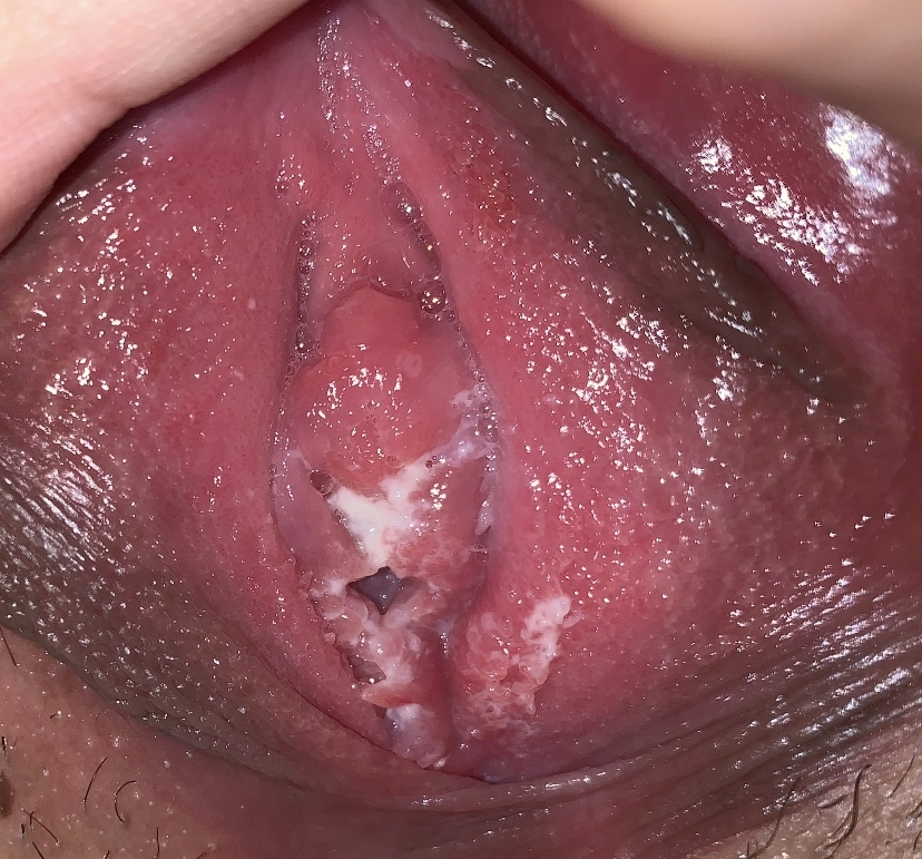papilloma of esophagus icd 10
