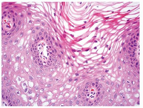 vestibular papillomatosis histology hpv vaccine gp
