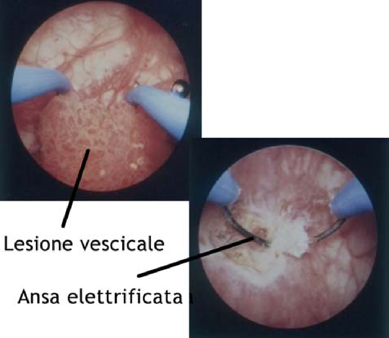 papilloma della vescica sintomi papiloma es lo mismo que cancer