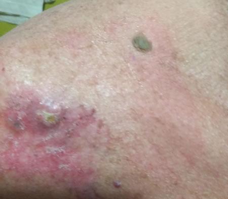 se poate vindeca cancerul de piele paraziti kod macaka lecenje