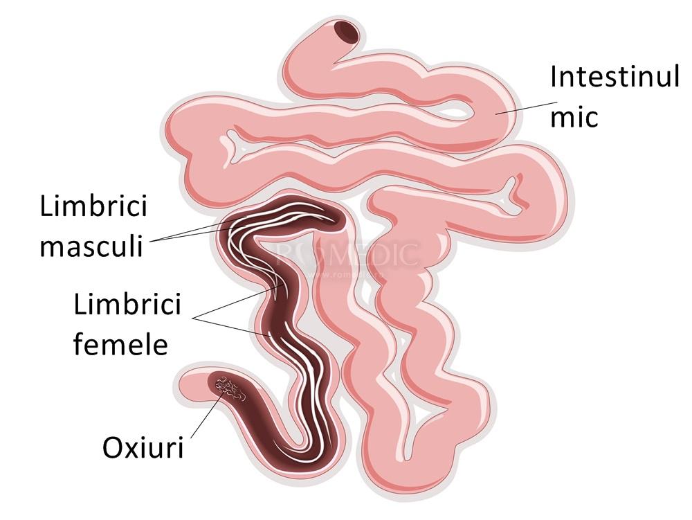 tratament oxiuri in sarcina
