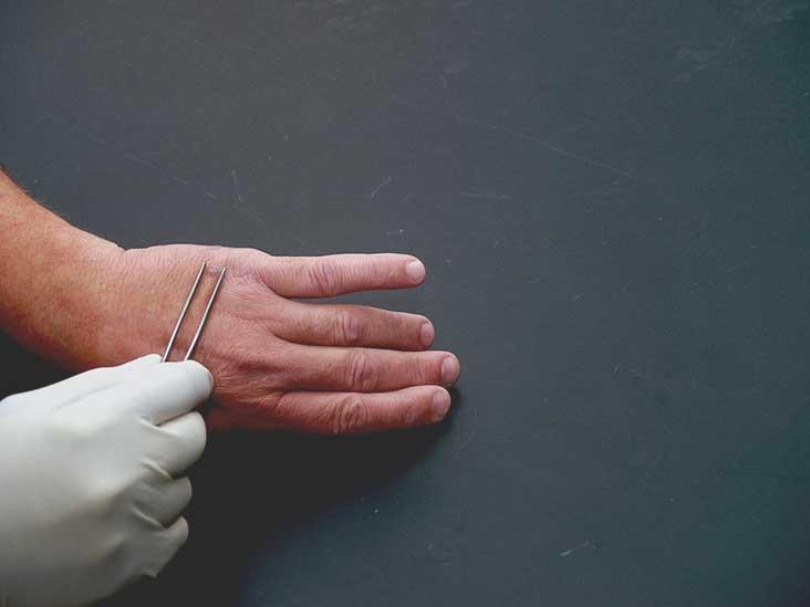 warts on hands black spots simptome neplacute detoxifiere