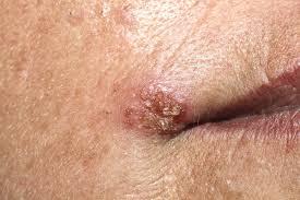 papiloma virus mujer sintomas
