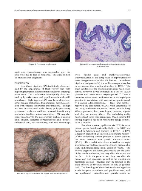 hpv skin wart hpv virus not 16 18