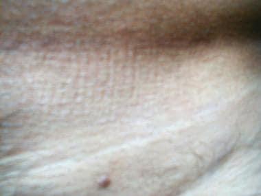 dermatologul elimină negii genitali)