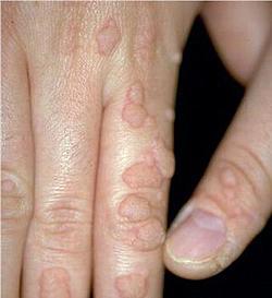 Comment depister le papillomavirus chez l homme