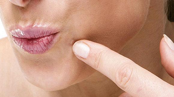Reguli simple care te protejeaza de gripa in (With images)   Medicale, Gripă