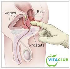 cancerul de prostata tablou clinic)