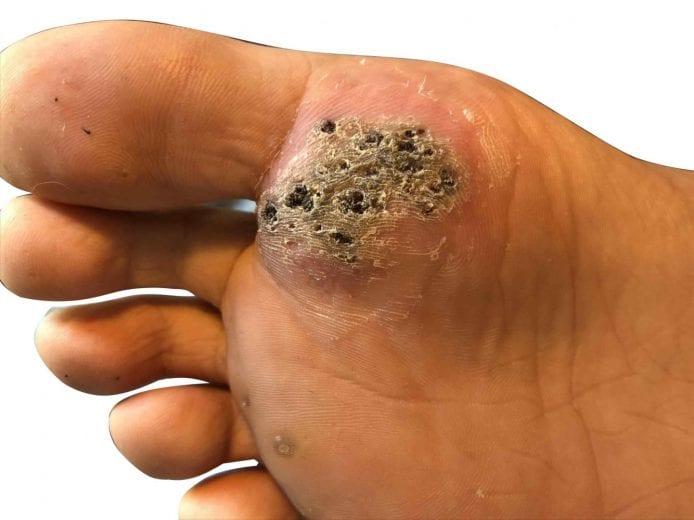 warts on foot