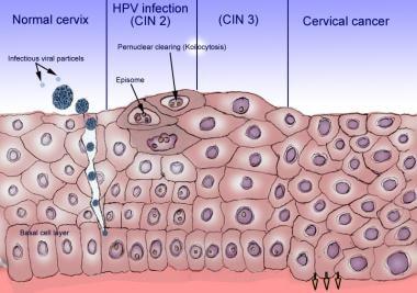 hpv treatment medscape papilloma invertito vescicale