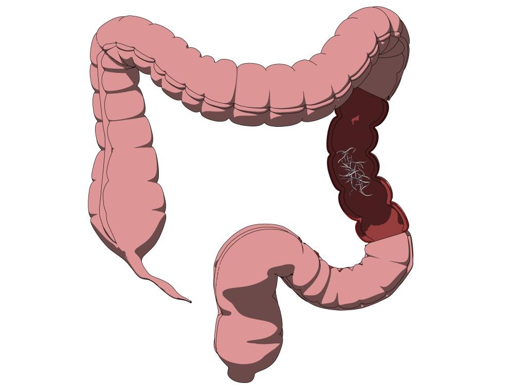 Limbricii - paraziti intestinali