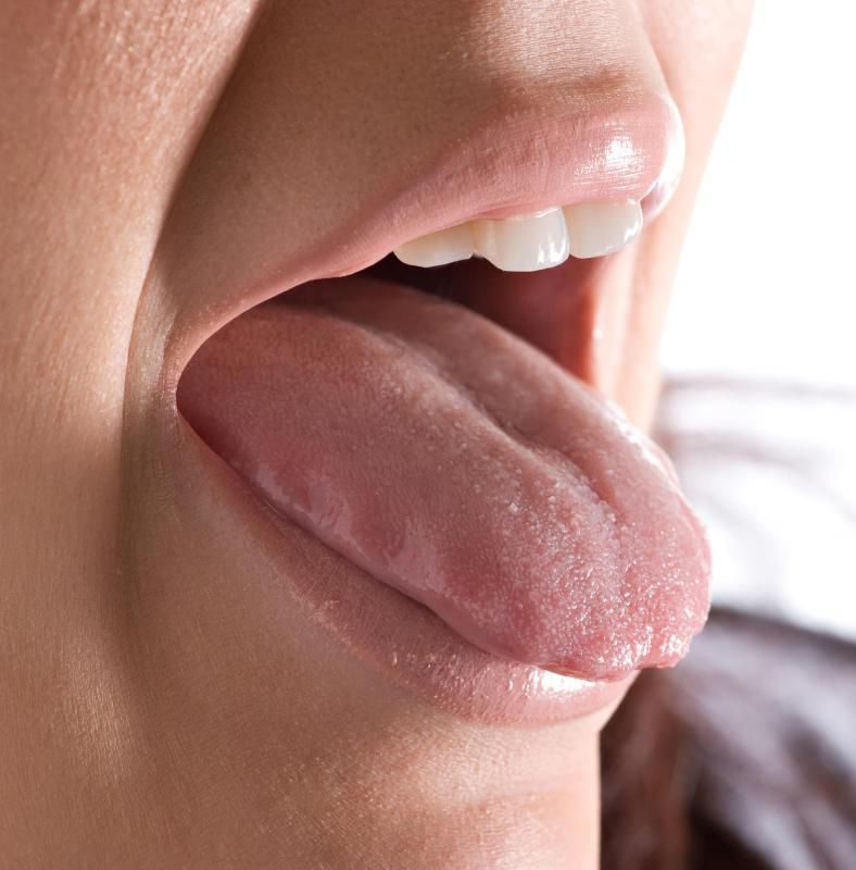 Wart tongue hurts. - Do warts on tongue hurt