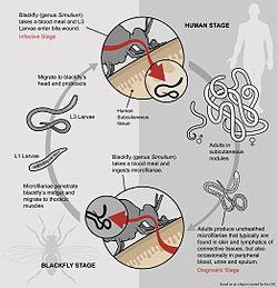 paraziti onchocerca urolog condilom